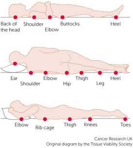 Illustration Showing Pressure Injury Points on the Human Body