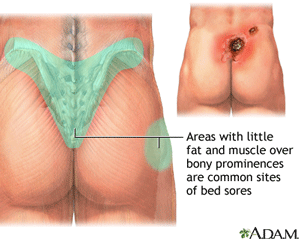 Illustration of an Area where Pressure Ulcers are Common