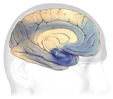 An illustration of changes to the brain in severe dementia.