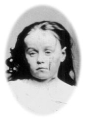 An 1874 photograph of Mary Ellen Wilson.