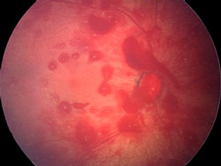 A scan showing a retinal hemorrhage.