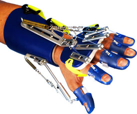 A photograph of the Saeboflex dynamic hand orthosis, used to aid in active movement of the hand.